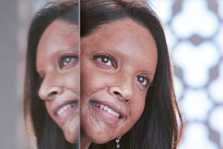 Chhapaak Box Office Collection | Day Wise | Worldwide